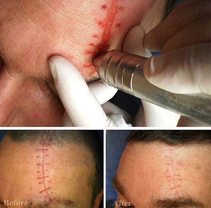 Процедура дермабразии эффективна в течение 40 дней после получения травмы