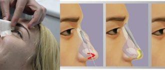 Ринопласттика горбинки носа