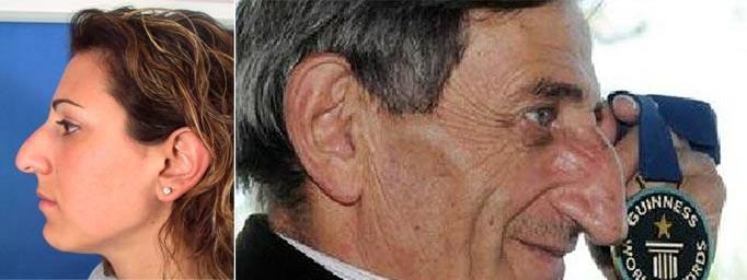 Формы горбинок на носу