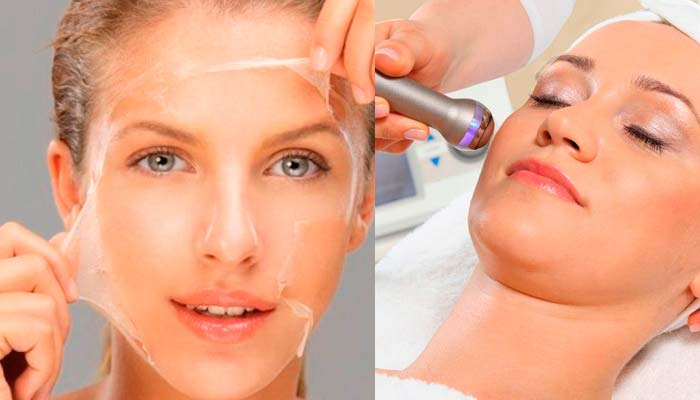 Химический пилинг в борьбе с рубцами на коже лица
