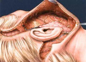 Голова в разрезе. Операция фейслифтинга