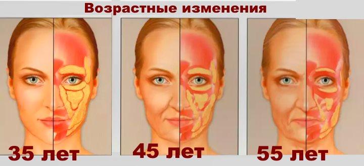 Жировые отложения в лице