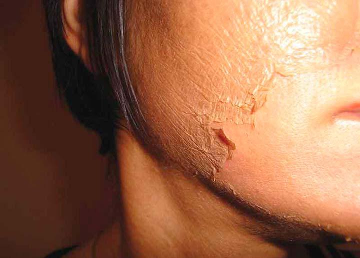 Корочка на лице после ТСА-пилинга