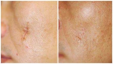 Лазерная дермабразия рубца - до и после