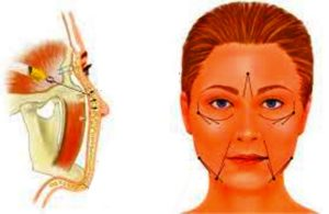 Техника липофилинга лица