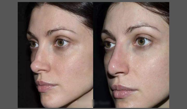 Коррекция носа жиром пациента