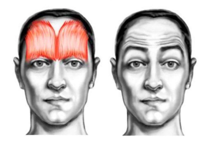 Область лица - лобные мышцы