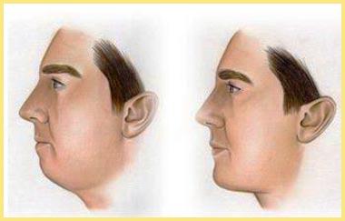 Изменение формы лица - ментопластика