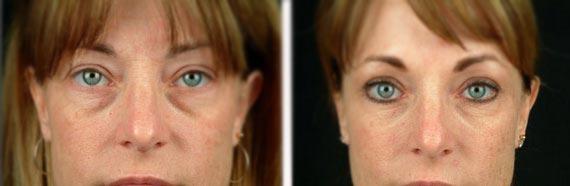 до и после мезотерапии носослёзной борозды