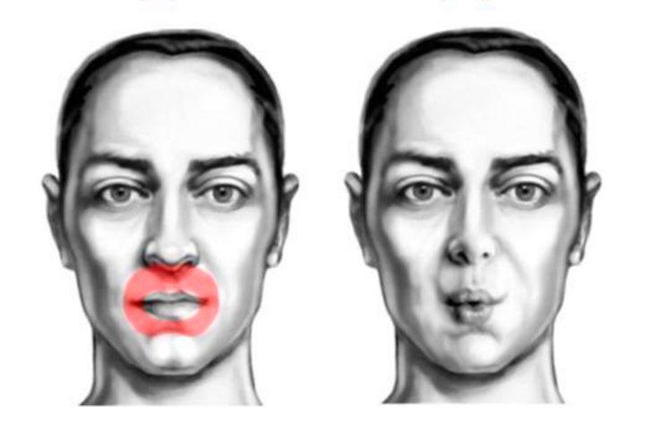 Область лица - мышцы губ