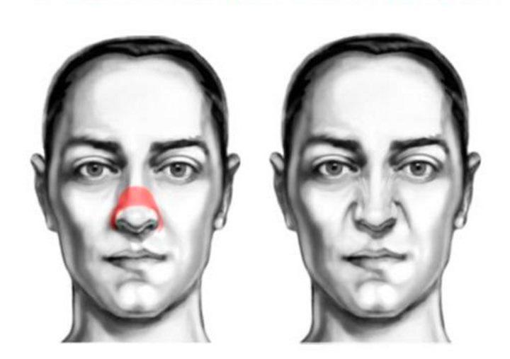 Область лица - мышцы носа