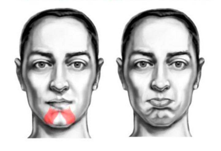 Область лица - мышцы подбородка