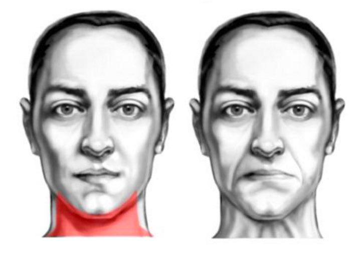Область овала лица - мышцы шеи