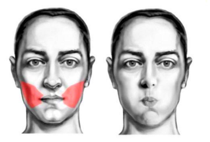 Область лица - мышцы щек
