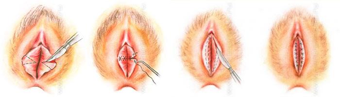 Виды либиопластики