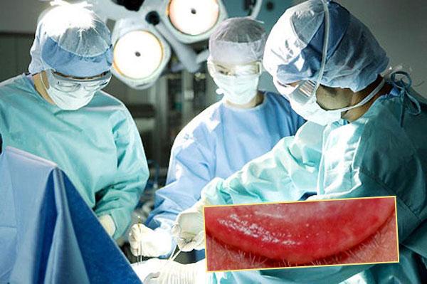 Гематомы, воспаления после лабиопластики