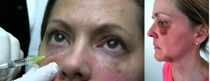 После липофилинга носослезной борозды