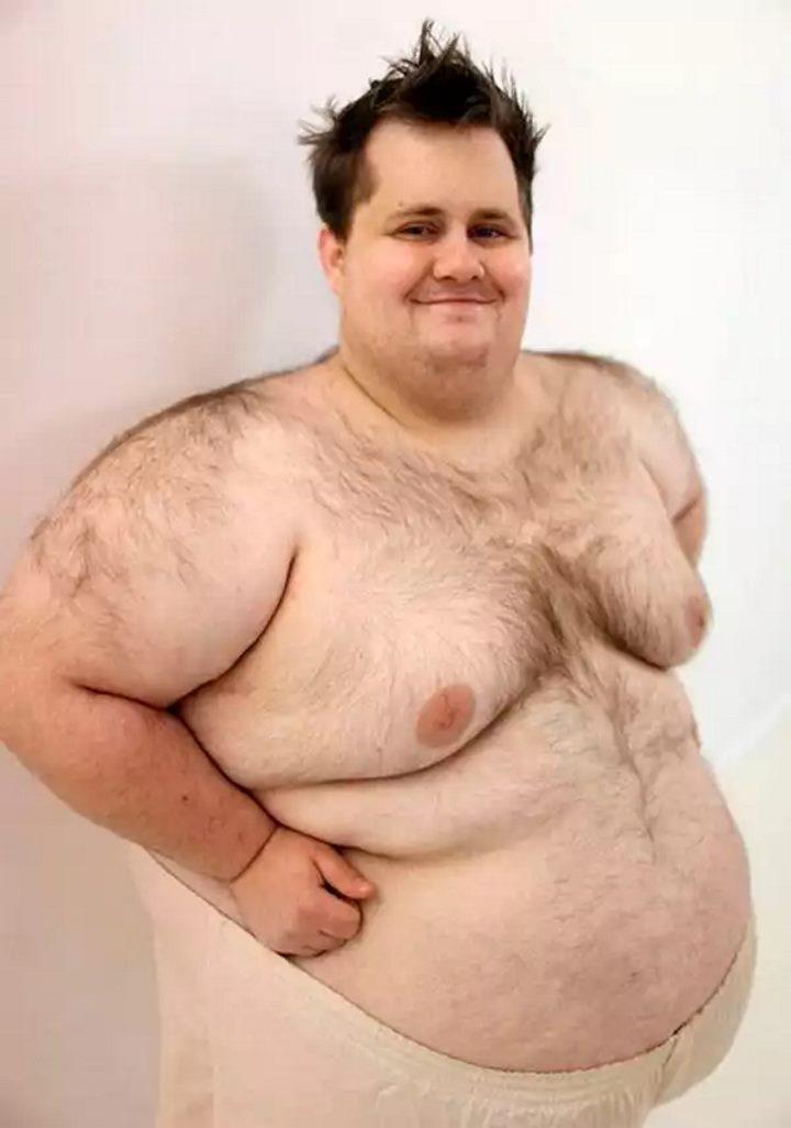 Липомастия или ожирение у мужчины