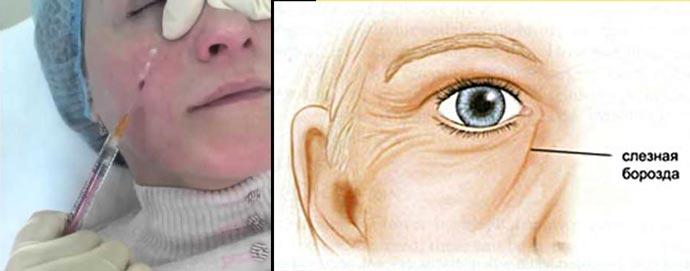 Носослёзная борозда и липофилинг