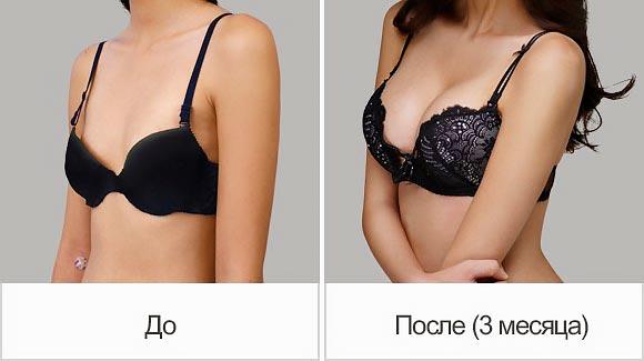 Эффект до и после липофилинга груди