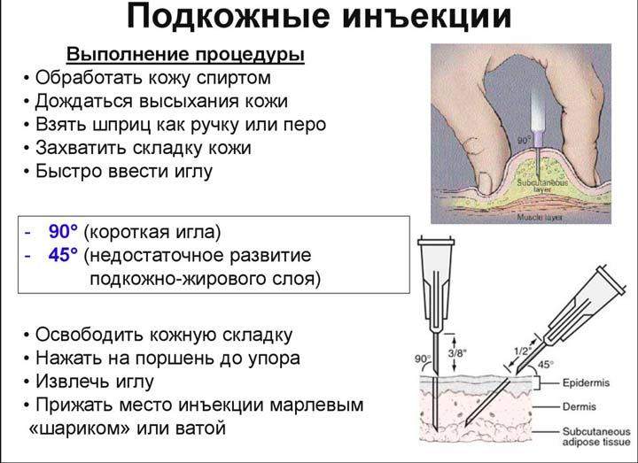Подкожный ввод инъекций при аутогемотерапии