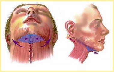 Метод подяжки шеи