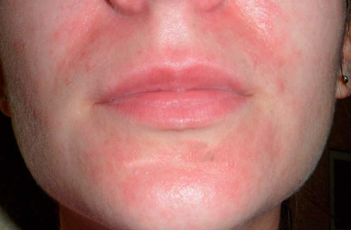 Покраснение кожи после ТСА-пилинга