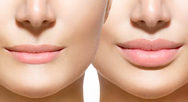До и после коррекции губ