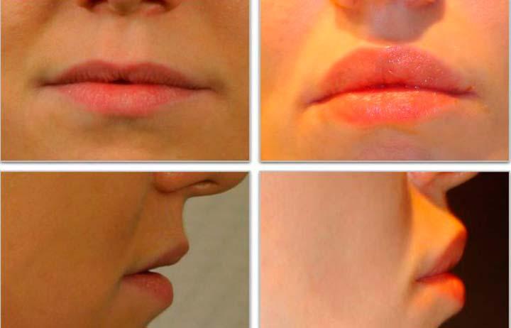 Результат хейлопластики губ