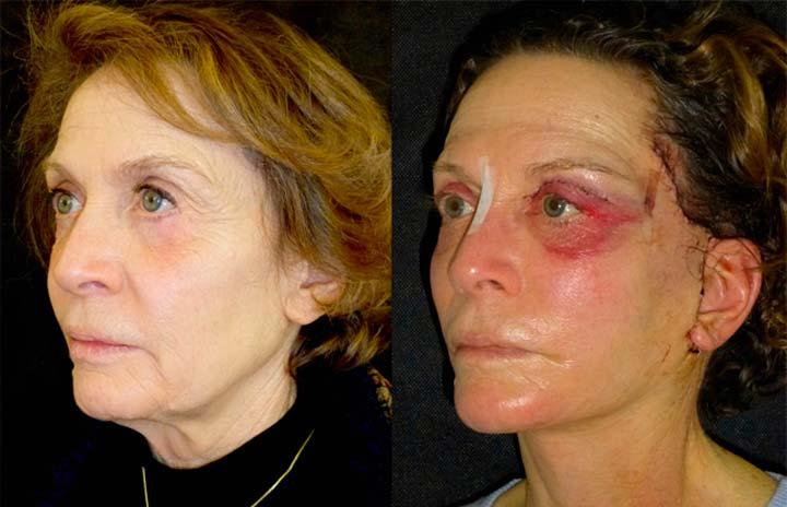 Хирургическая подтяжка и ее возможные последствия