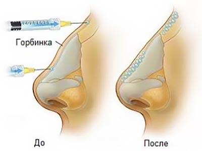 Ринопластика горбинки до и после