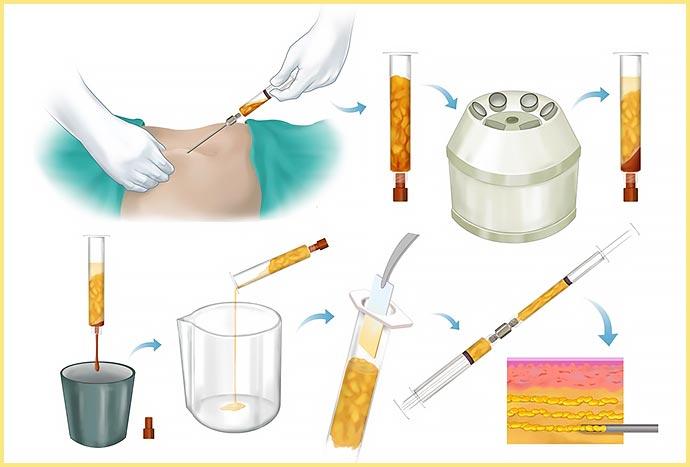 Схема сбора жира для липофилинга