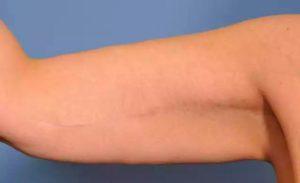 Дряблая кожа доя брахиопластики