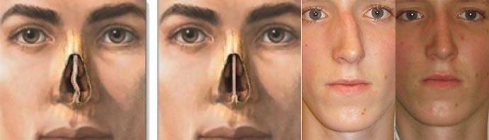 Выпрямление перегородки носа