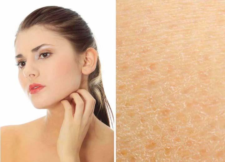 Шелушение кожи после ТСА-пилинга
