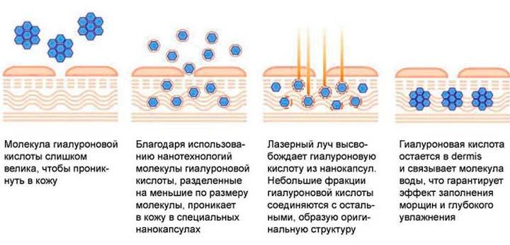 Суть процесса лазерной боревитализации