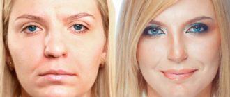 Изменен нос у блондинки