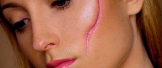 Шрамы и рубцы на лице