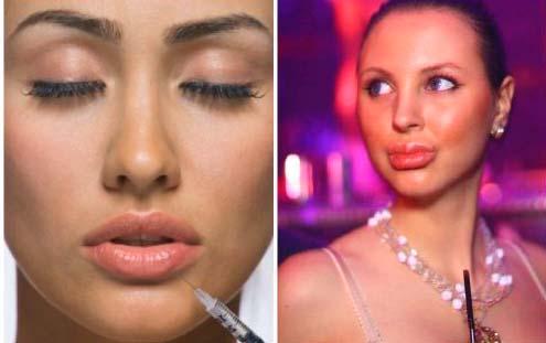 Увеличение губ силиконом