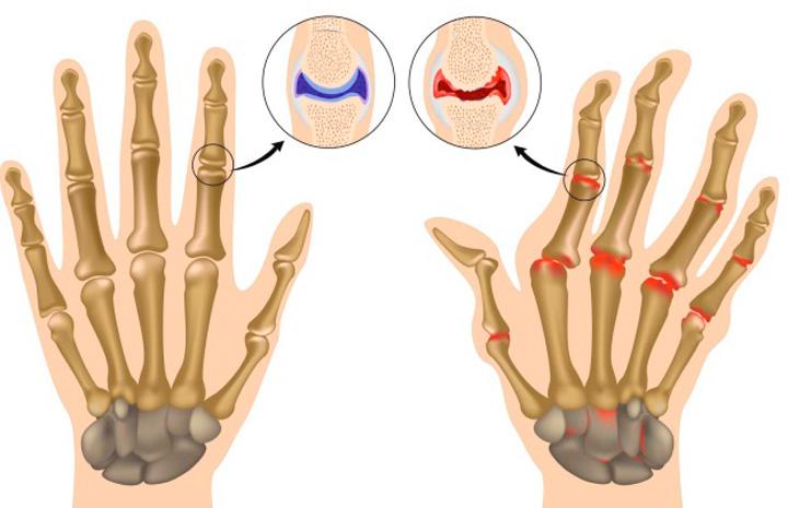 Укрепление суставов в результате аутогемотерапии