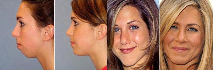 Ментопластика: результаты до и после
