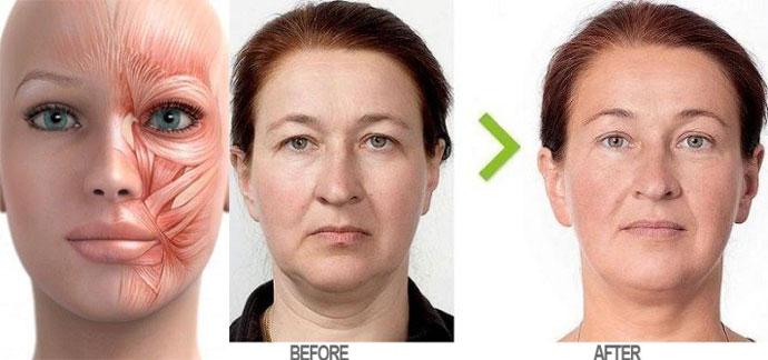 Гимнастика для лица эффект до и после