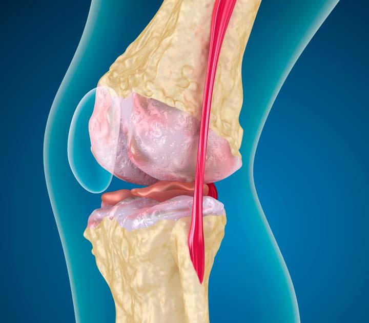 Парафинотерапия при воспалении суставов