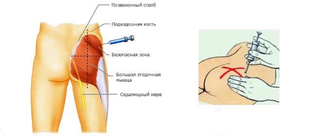 Внутримышечное введение при аутогемотерапии