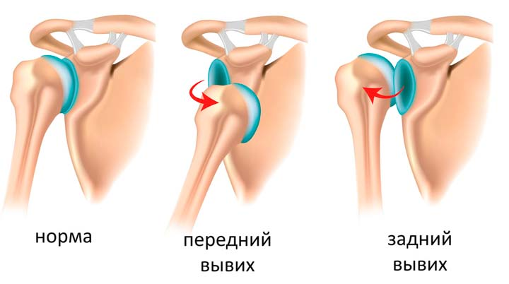 Парафинотерапия при вывихе суставов