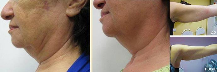 Термолифтинг шеи и рук до и после