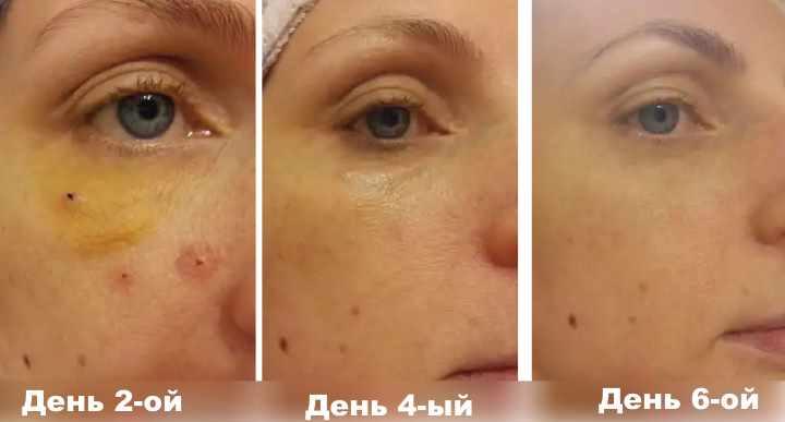 Отчет из фото о пиявках на лице