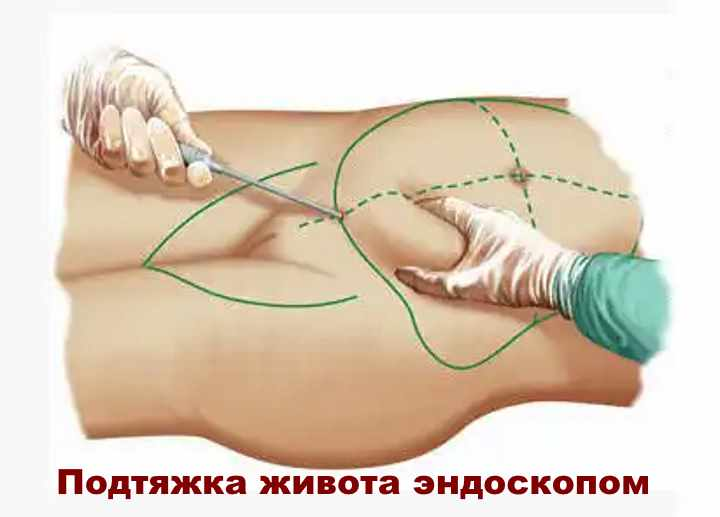 Вид пластики живота - эндоскопия