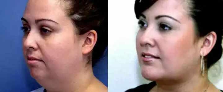 До и после операции на шее