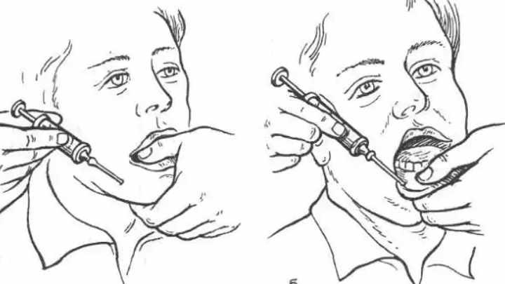 Обезболивание внешнее и внутреннее